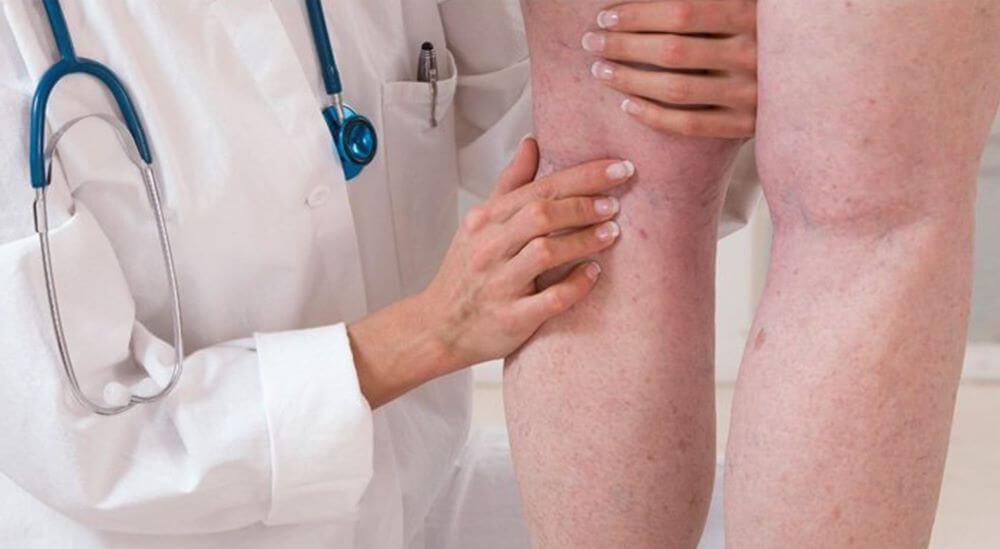 trombose o que e sintomas quais sao tipos