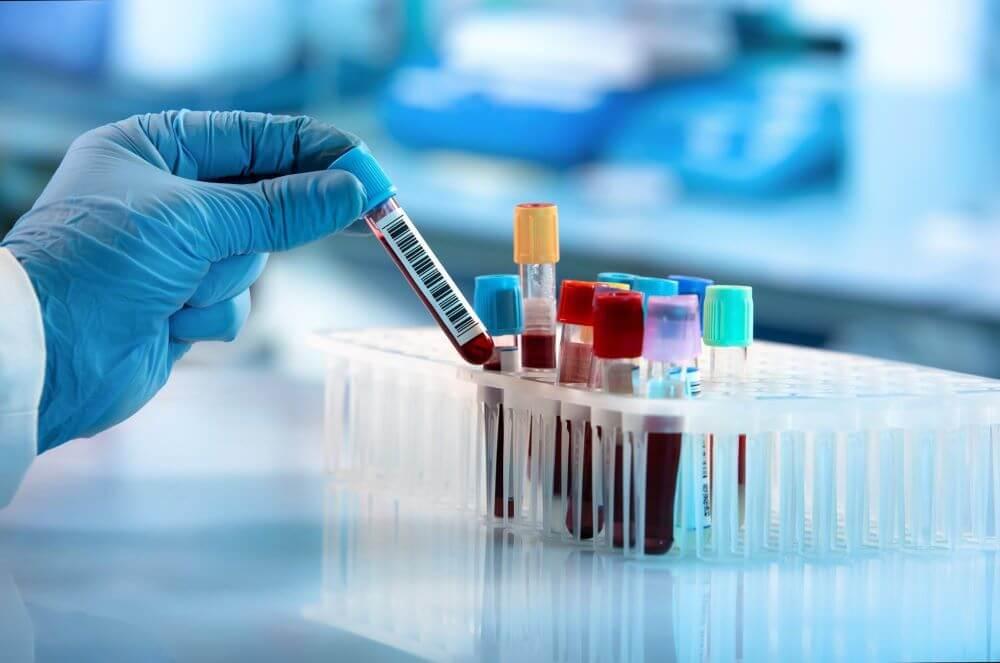 equipamentos para laboratorio analises clinicas